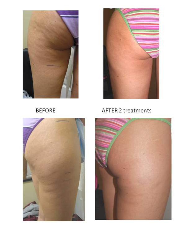 CELLULITE BEFORE AND AFTER WEIGHT LOSS - burmes fede