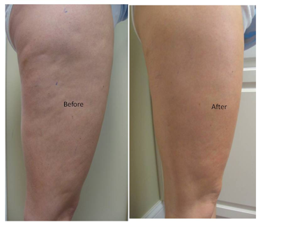 Laser Treatments In Evansville Lose Inches Tighten Skin Reduce